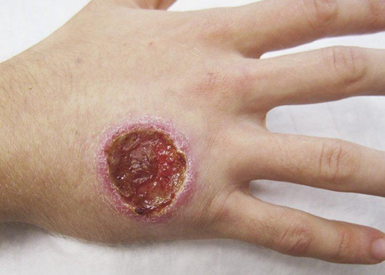 Cutaneous Leishmaniasis, NEJM,