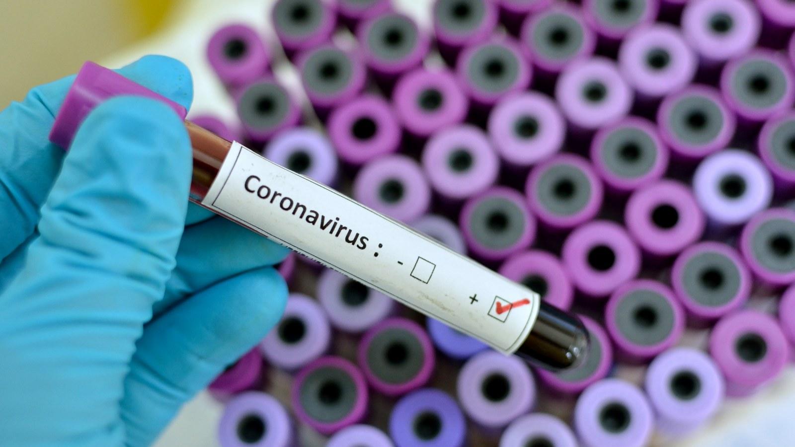 Image result for corona virus hd wallpaper