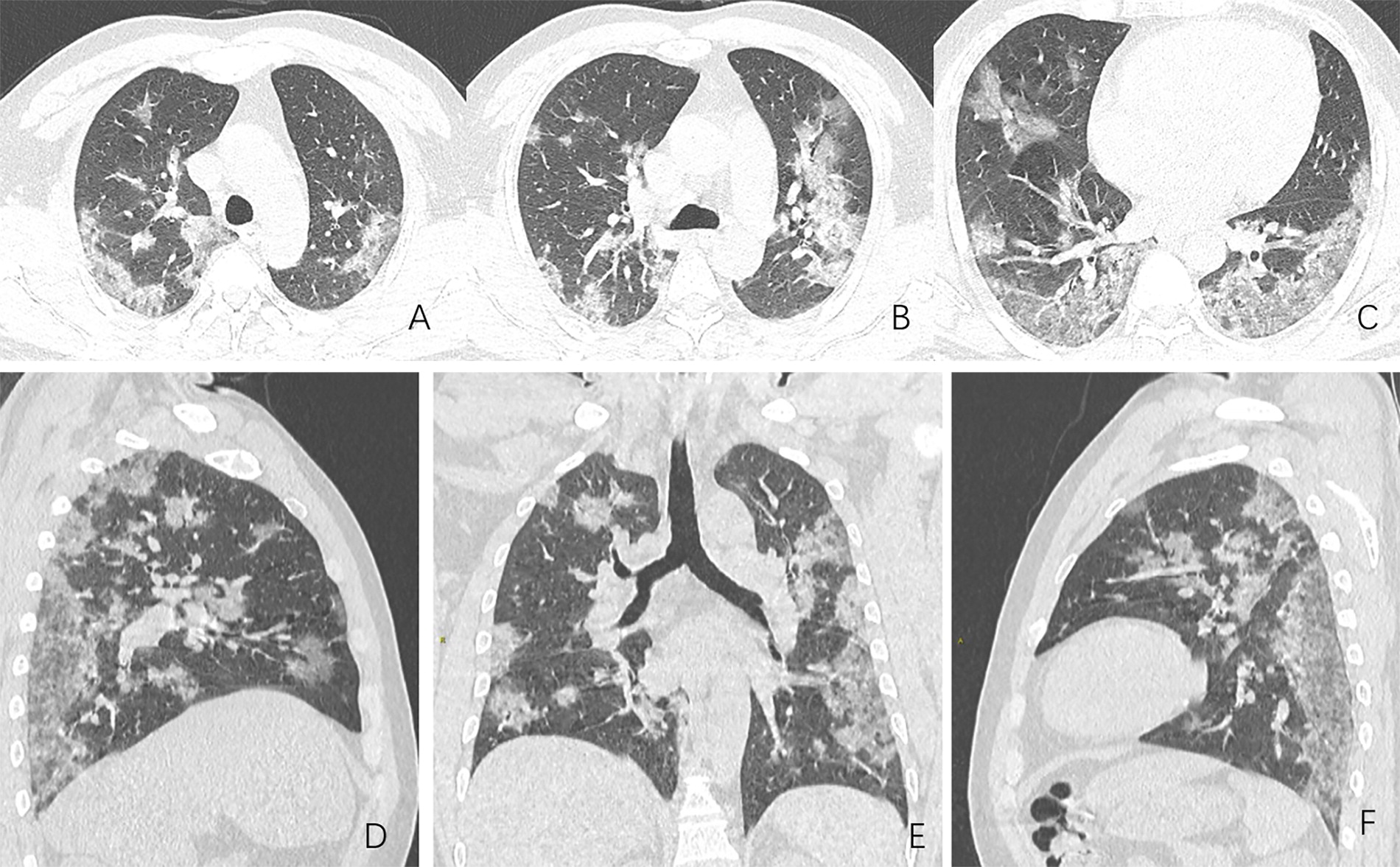 CT Scans Show What Coronavirus Did to the Lungs of COVID-19 Sufferers thumbnail