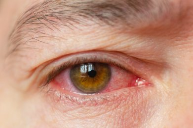red eyes, conjunctivitis, getty, stock