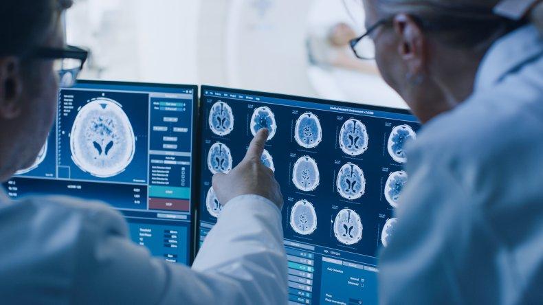 brain scan, doctor, MRI, stock, getty