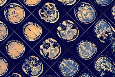 brain scan, stock, getty, parkinson's, alzheimer's