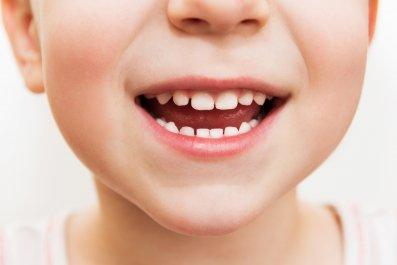 teeth, stock, getty,