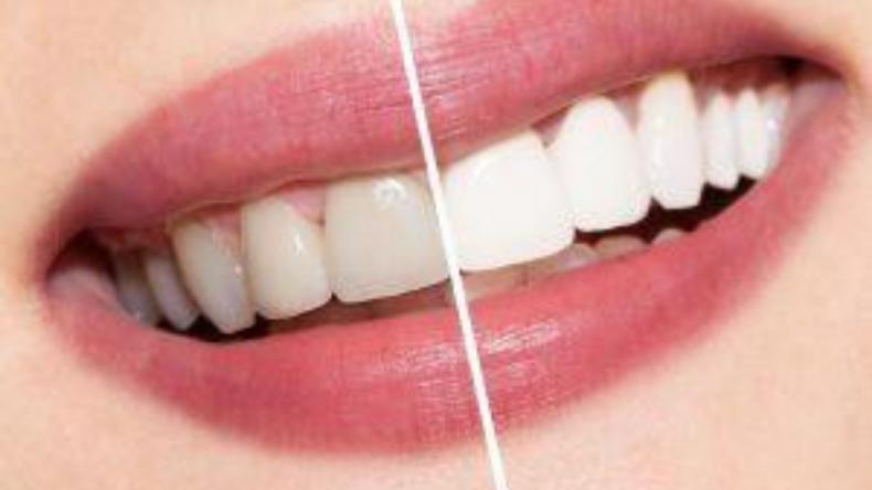Newsweek Amplify - Teeth Whitening