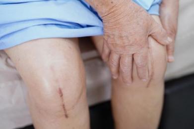 Newsweek AMPLIFY - Osteoarthritis Risk Factors