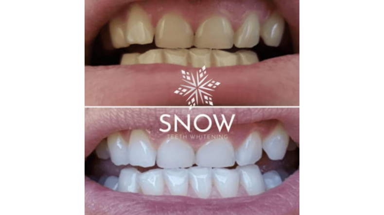 Snow: Before and After Results