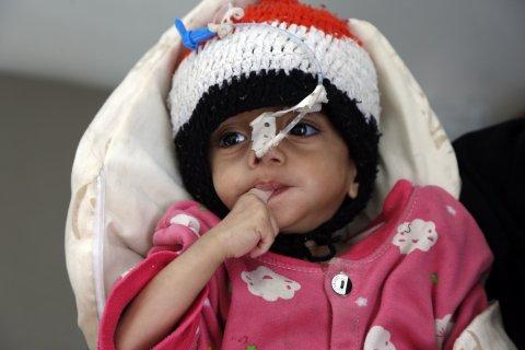 yemen, war, children, malnutrition, famine