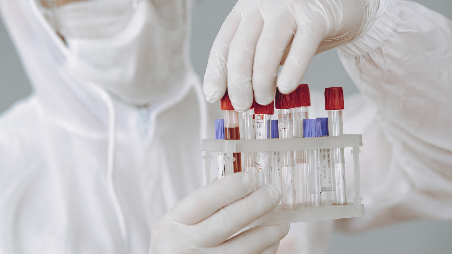 Blood Test May Help Diagnose Alzheimer's Disease