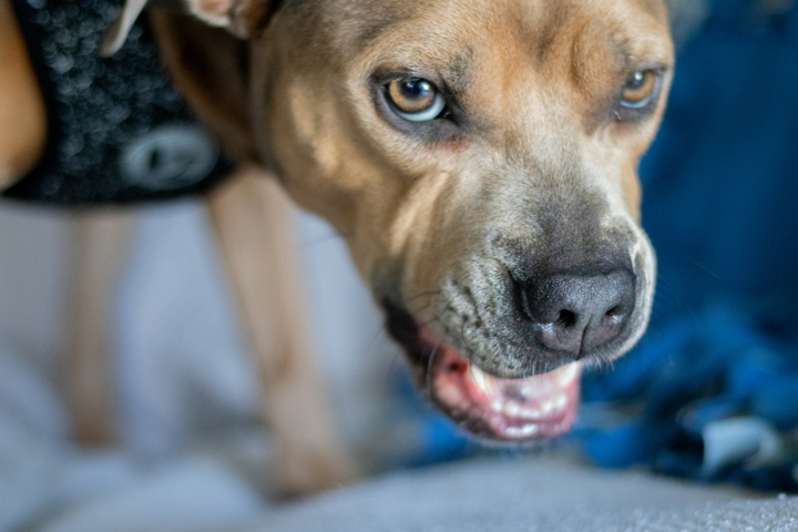 """Man mauled by three pit bulls at Kentucky park left """"pretty chewed up"""""""