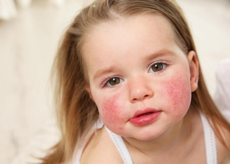 Food allergy symptoms appear within two hours