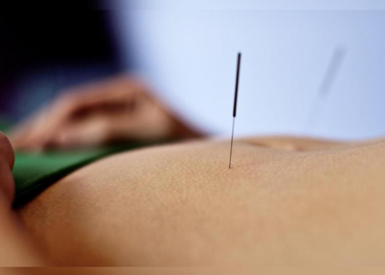 1971: Acupuncture