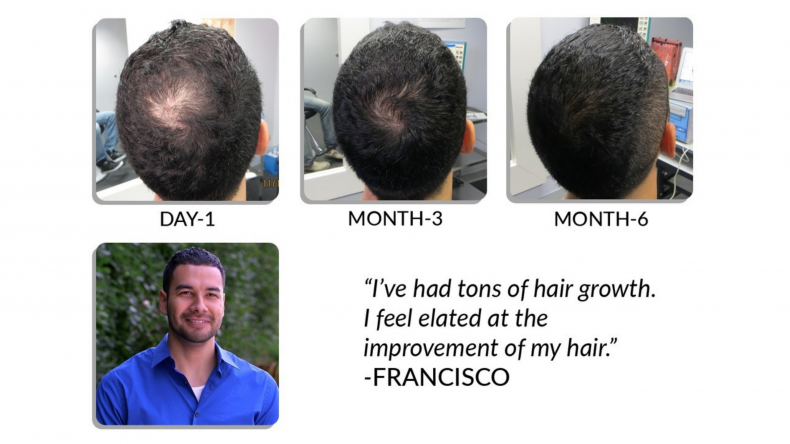 scalpmed claims guaranteed hair growth