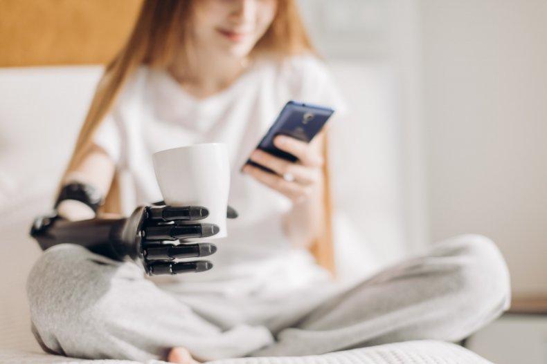 woman prosthetic arm