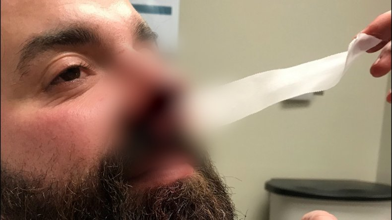 Louisiana man had nose partially bitten off.