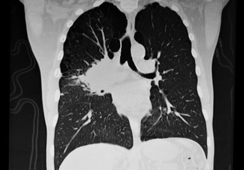 Image of a right hilum lung tumor