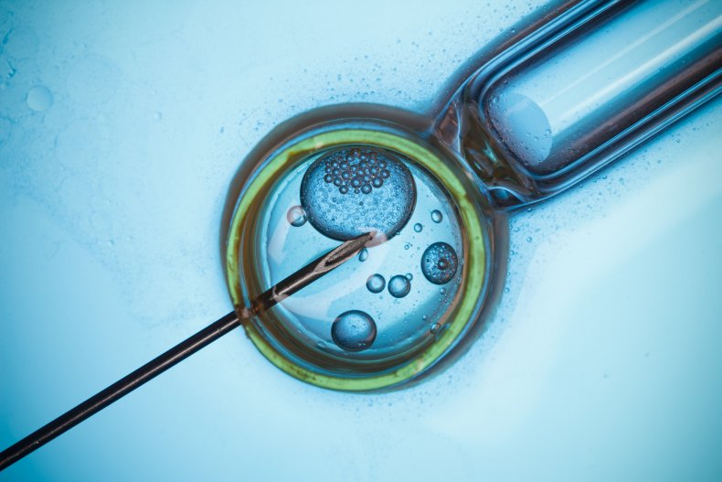 Stock image of the IVF process