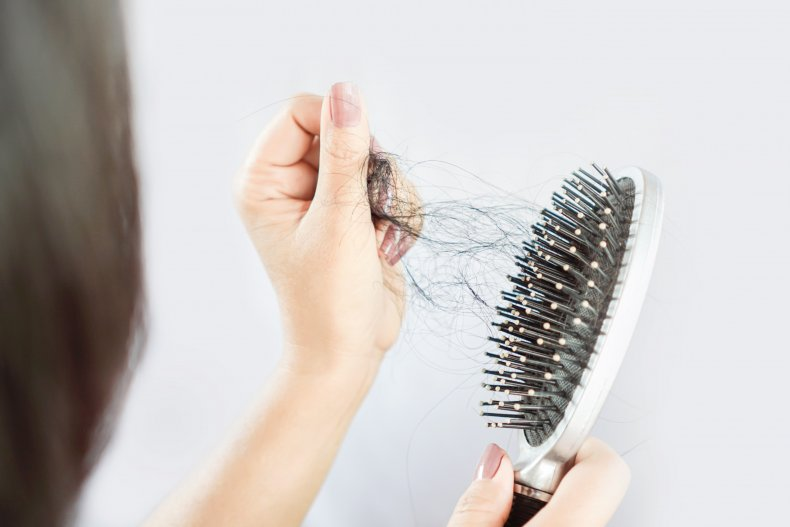 File photo of a hairbrush.