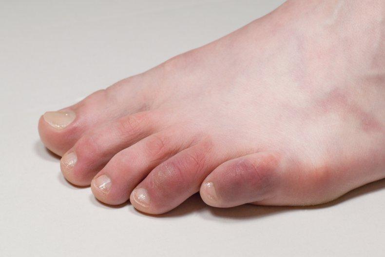 covid toes, coronavirus, getty, stock