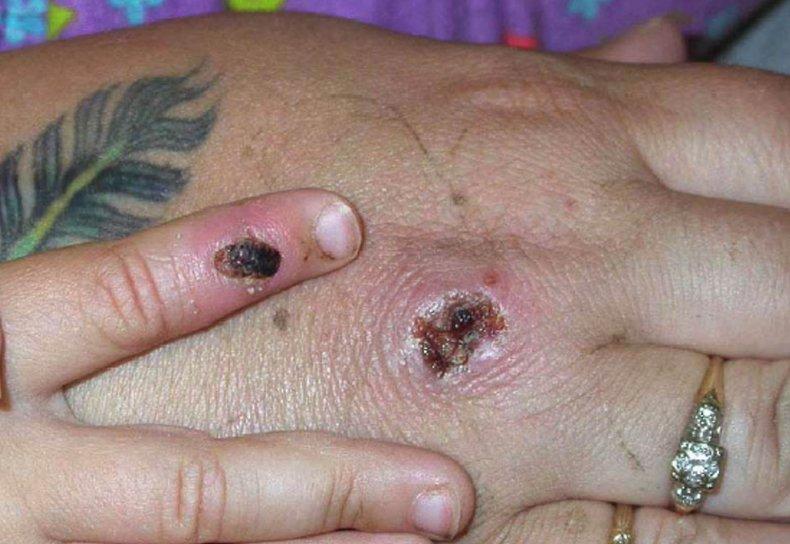Monkeypox lesion