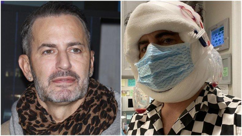 Marc Jacobs gets a facelift
