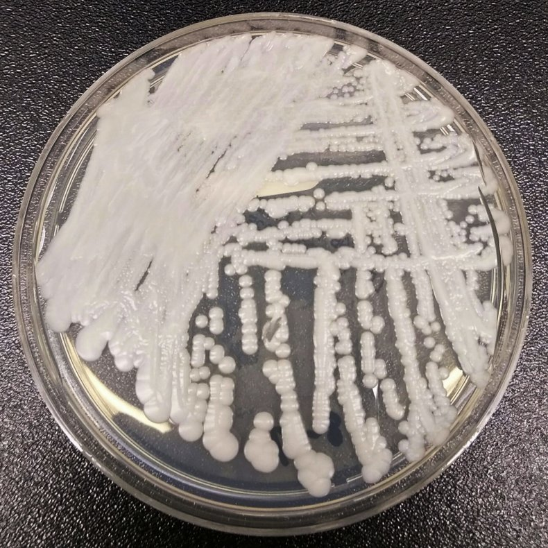 CDC Reports 'Superbug' Outbreaks