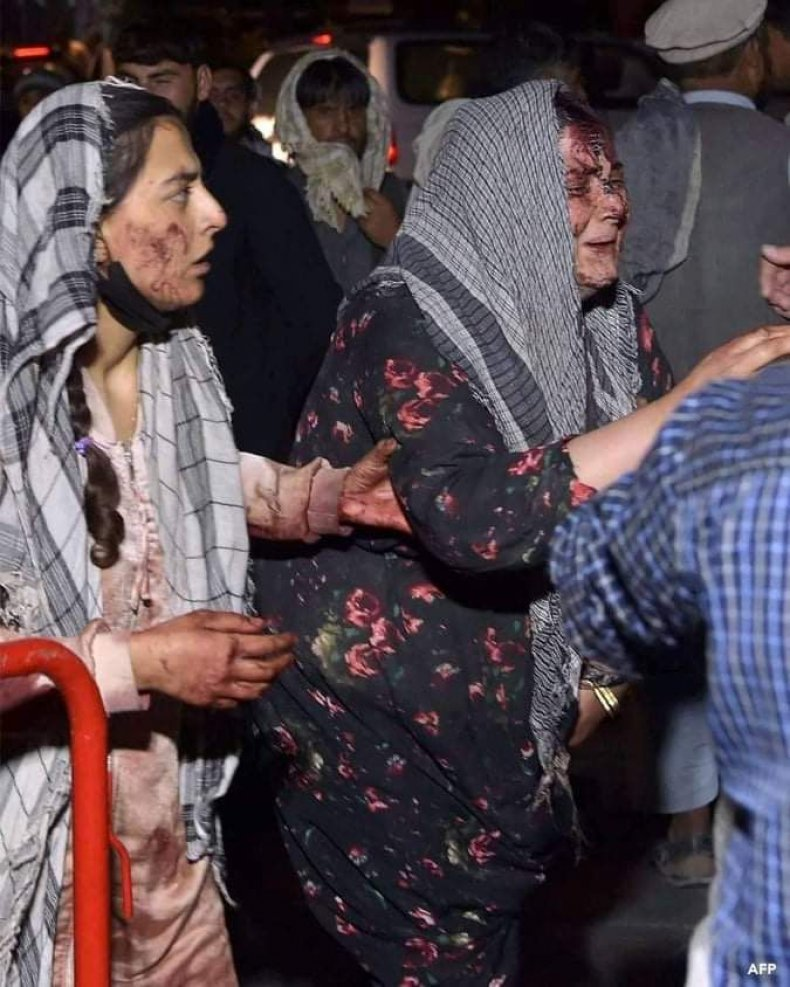 Blast at Kabul airport cause many casualties