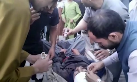 Man Wounded in Kabul Attack