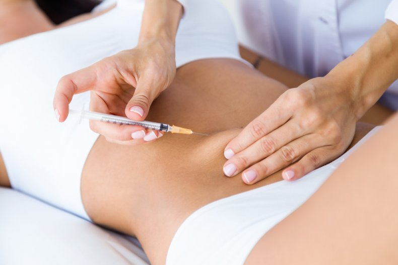 A woman undergoing a cosmetic procedure