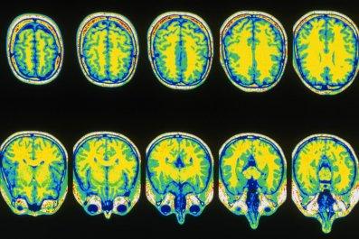 12-20-2013_NW0546_MRI