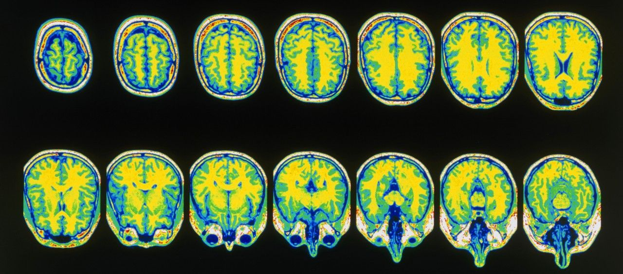 12.20_NW0546_MRI