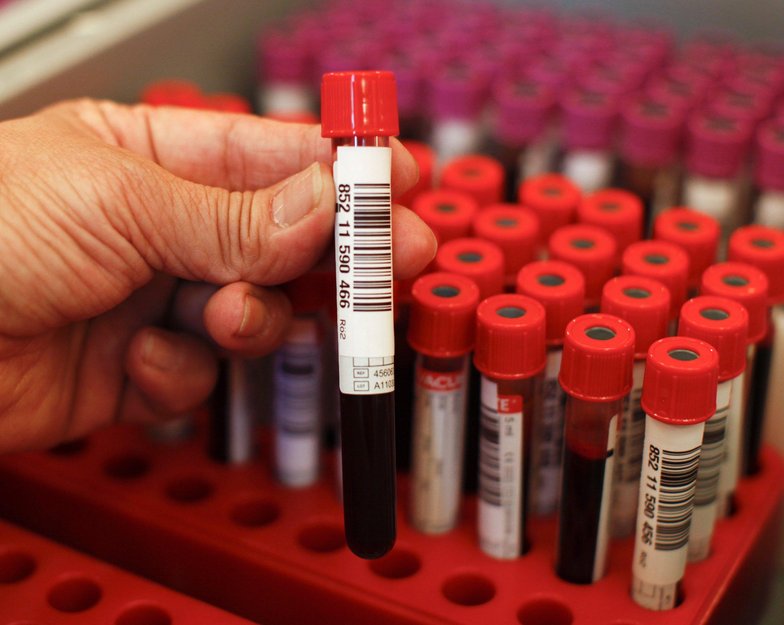 RTR2NCYL-blood-vial