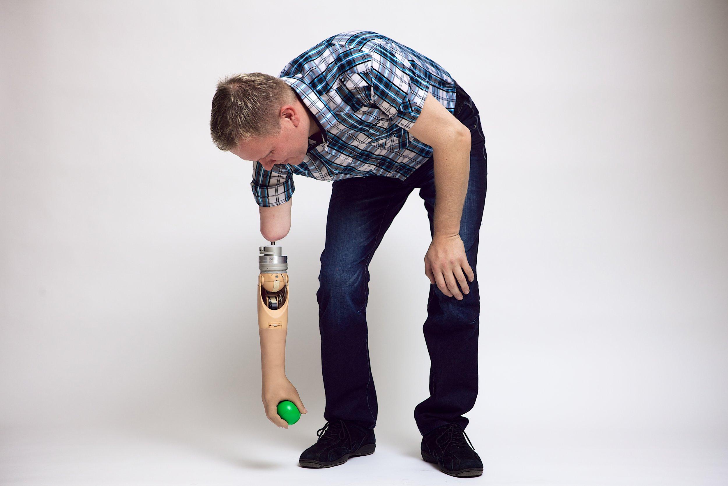 10-8-14 Prosthetic arm 1