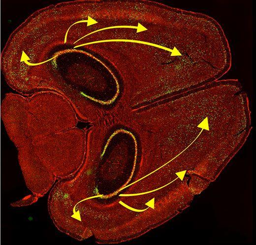 mouse-brain-lg