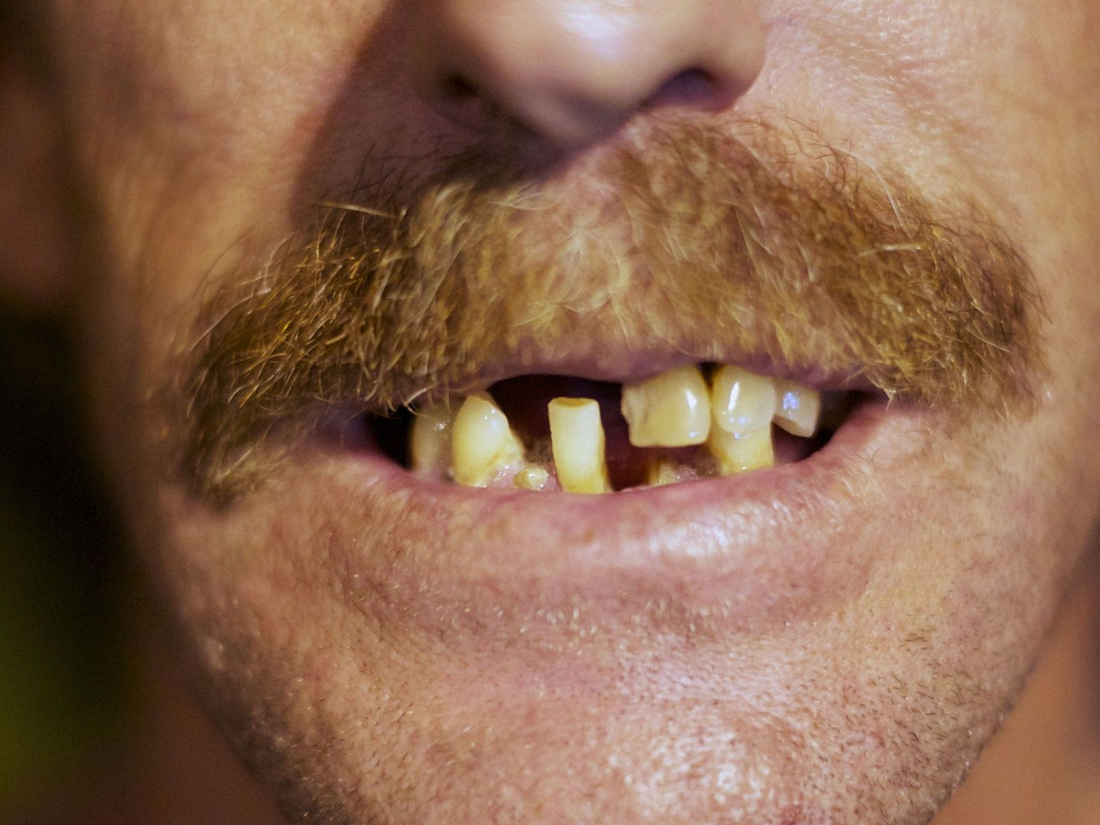 The Difference Between Rich and Poor? Eight Teeth, Says Dental Study