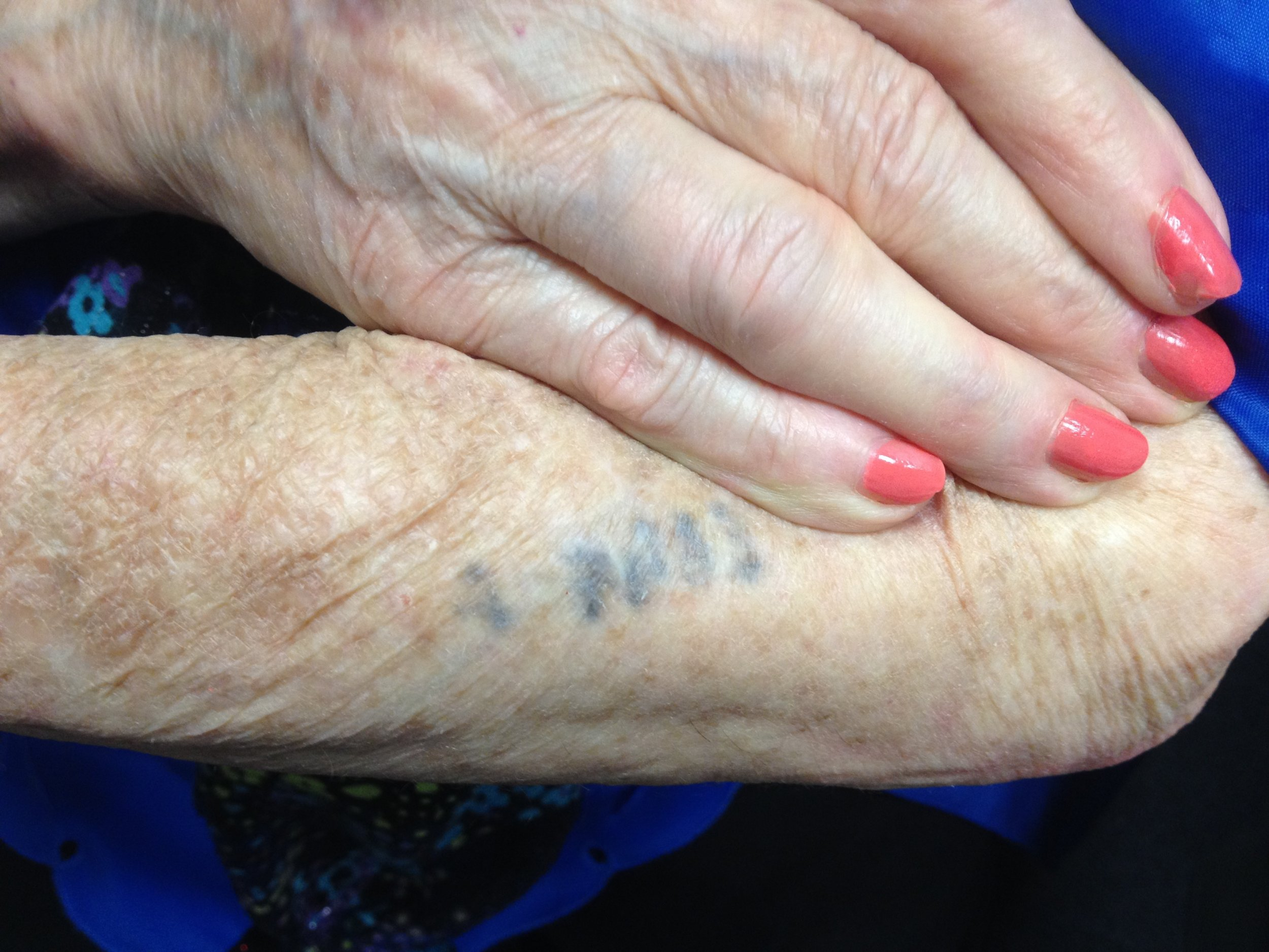 c98ec8e6a Quora Question: What do Holocaust Survivors Think of Their Tattoos? -  Thaler Holocaust Remembrance Web SIte. ""