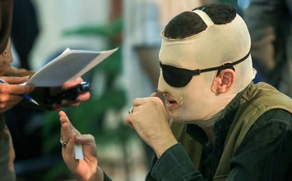 Iran Blinds Acid Attacker In Eye For An Eye Justice