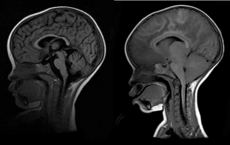 Cerebral-Malaria-MRIs