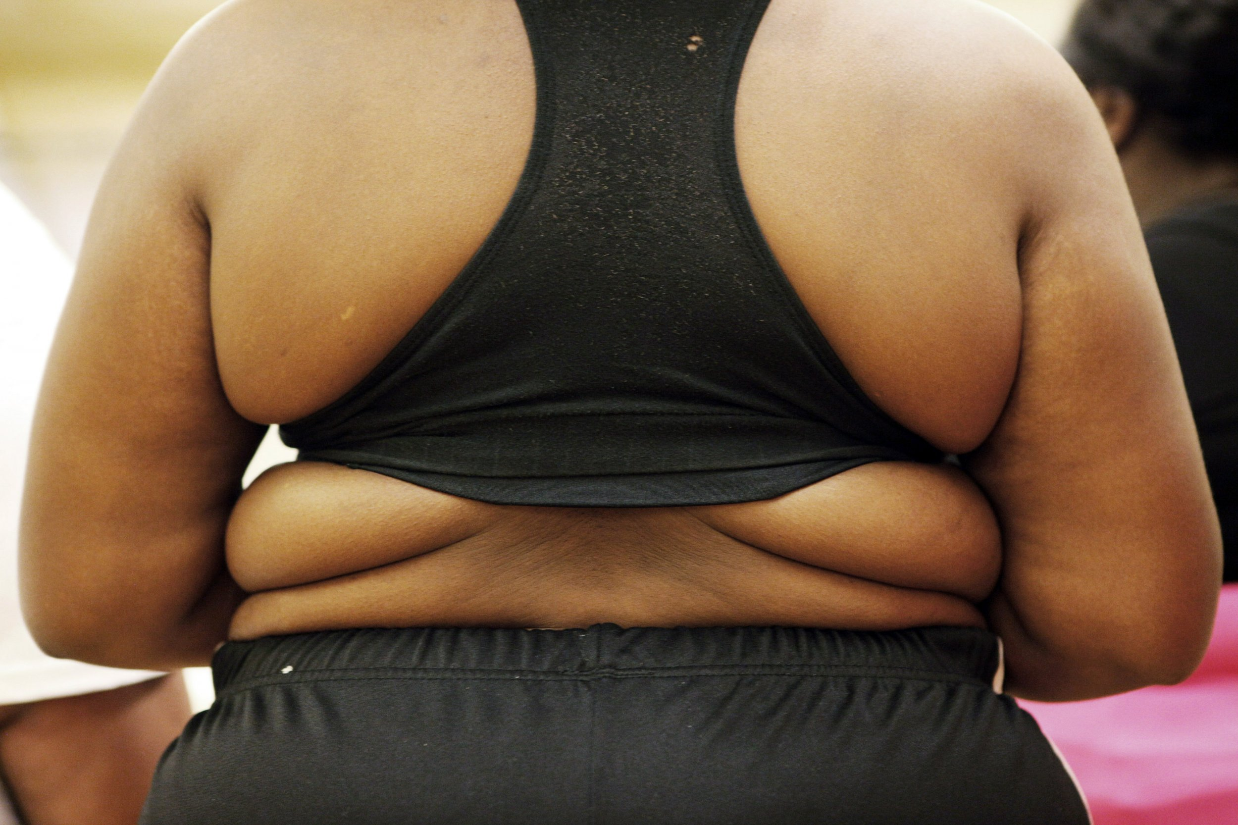 When it Comes to Losing Weight, Genes Aren't Destiny
