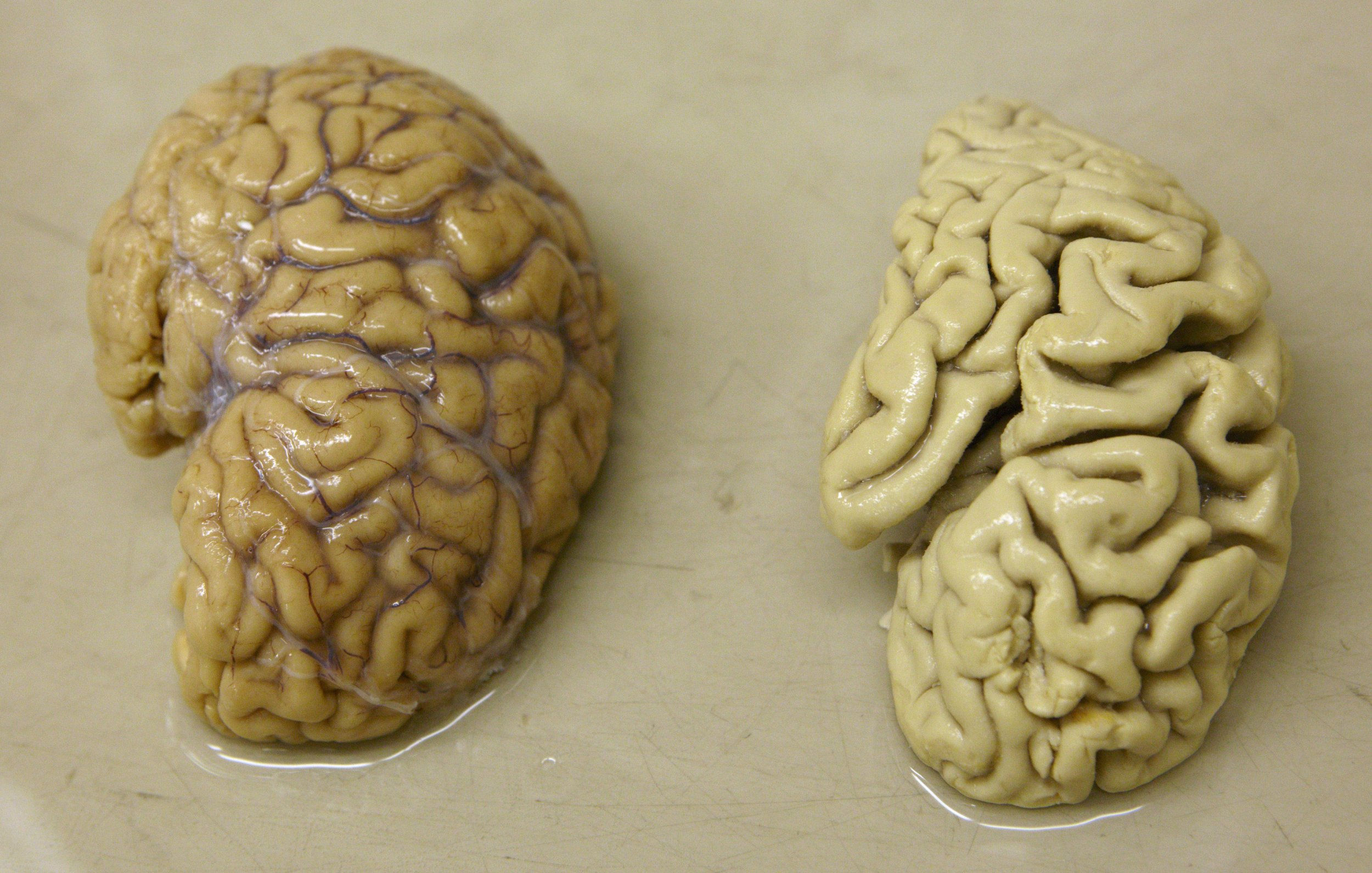 New Drug Shows Promise for Early-Stage Alzheimer's