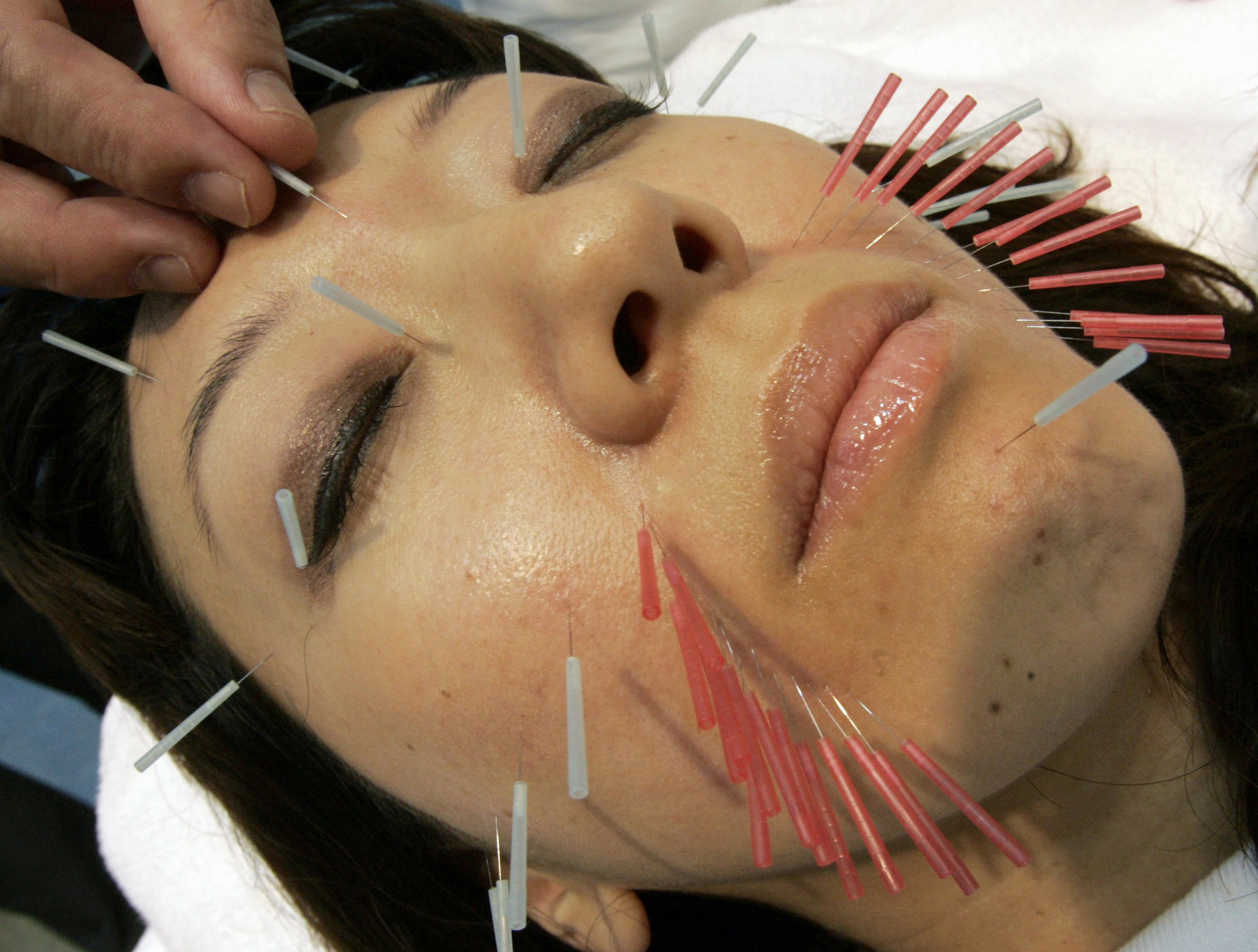 09_18_Acupuncture_01