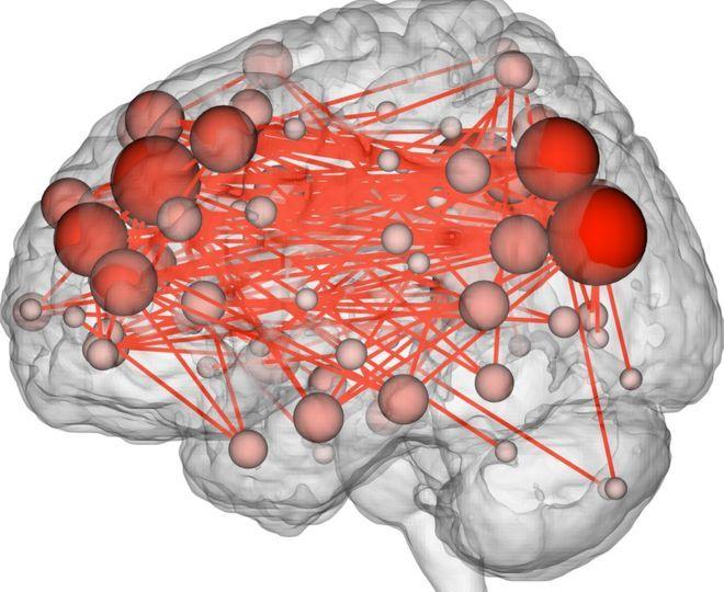 Image of brain fingerprint from Yale study