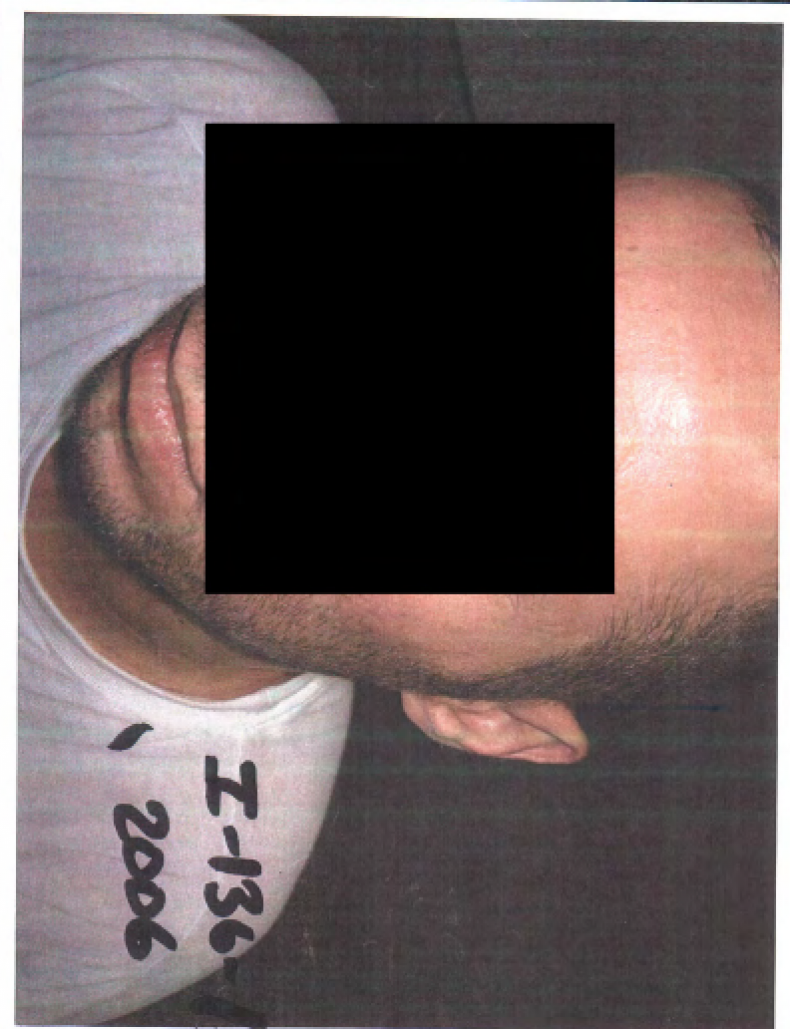 detainee11