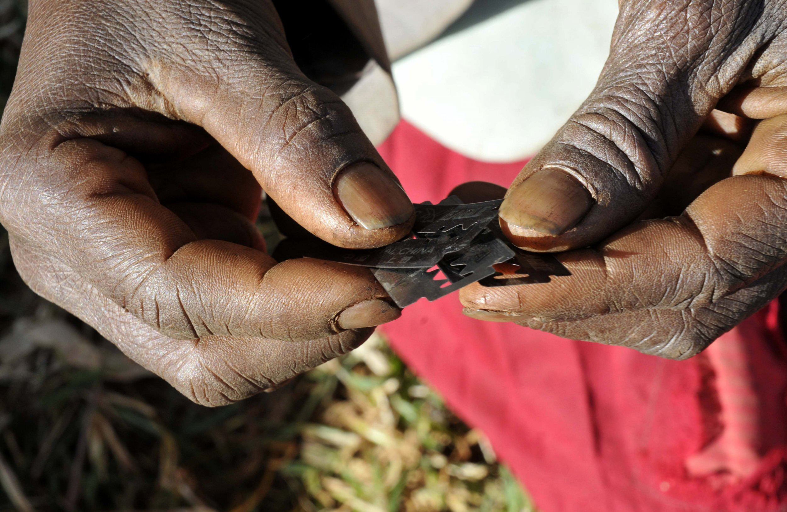 an analysis of the origins of female genital mutilation Female genital mutilation (fgm) is a collective term for various surgeries performed on young girls while growing up, often performed as part of initiation ritu.