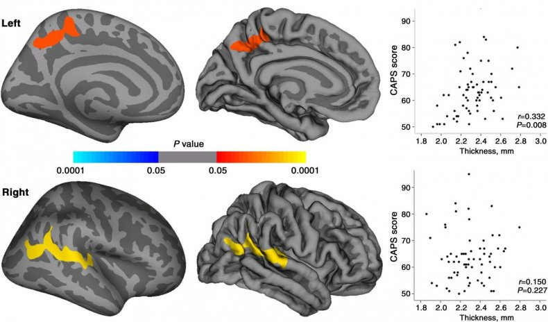 Images of PTSD Brains