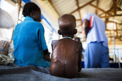 A South Sudanese boy with severe malnutrition rests in hospital.