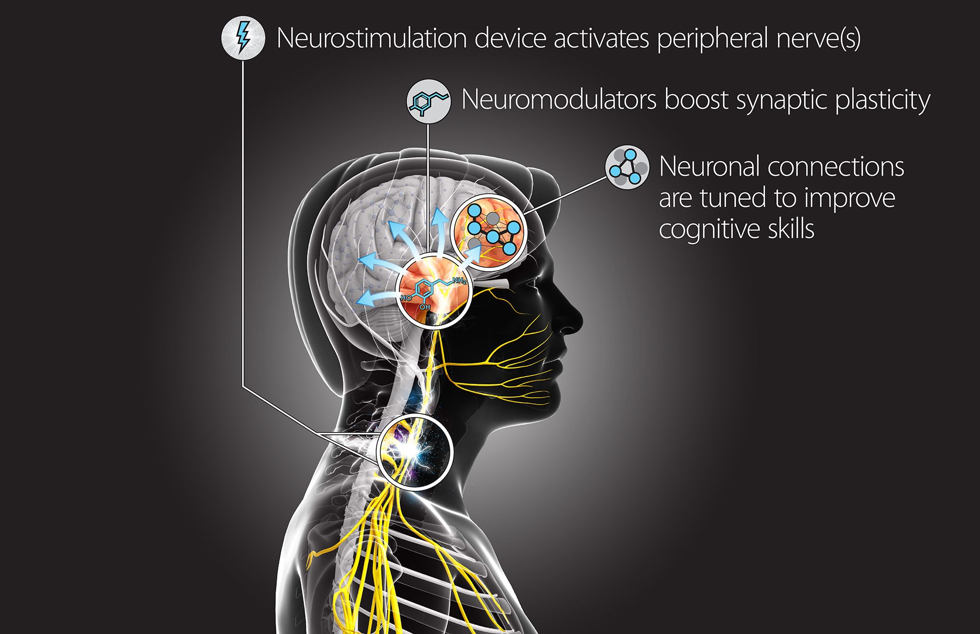 DARPA hack brain neurostimulation device