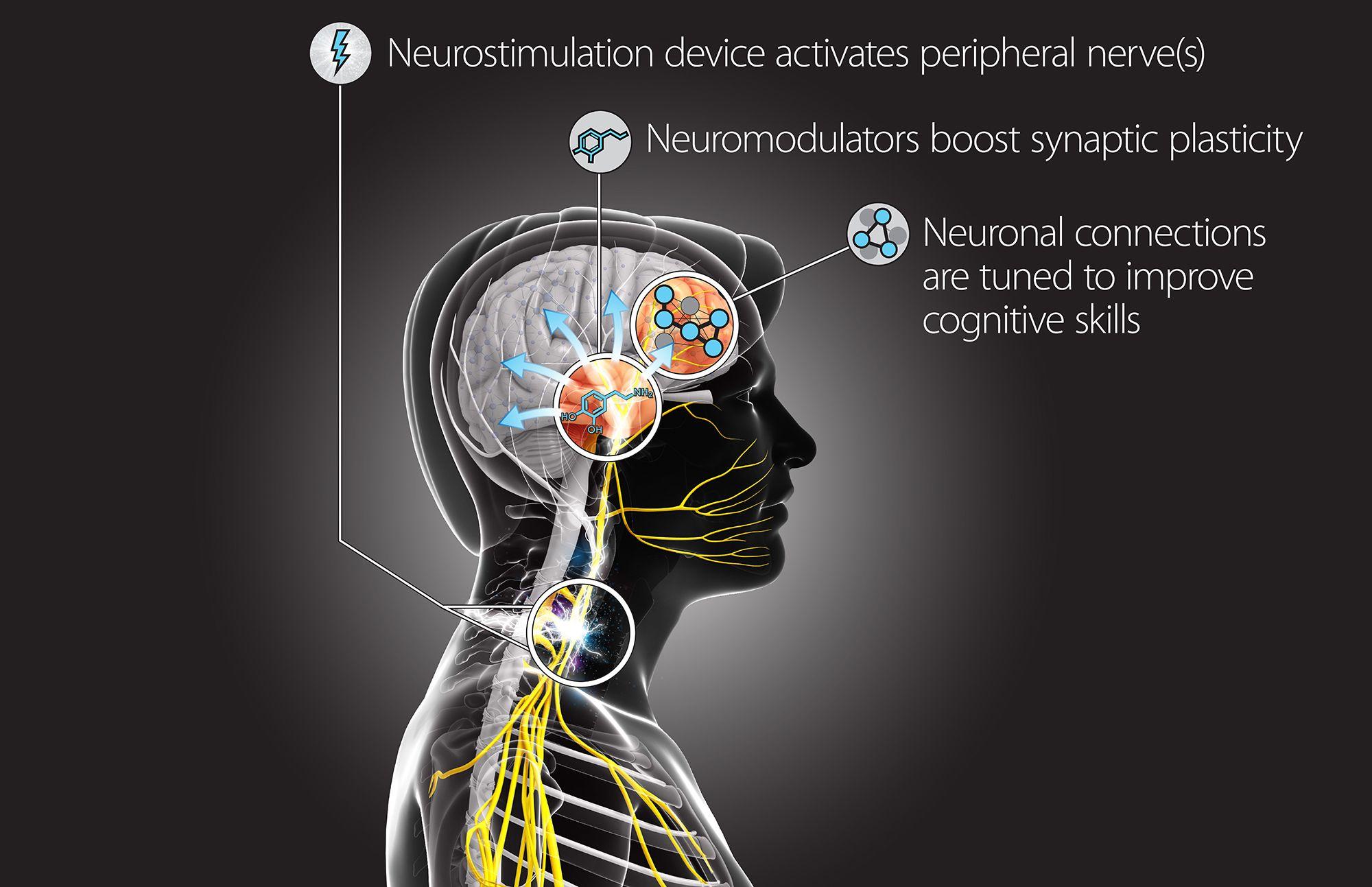 DARPA hack brain neurostimulation device
