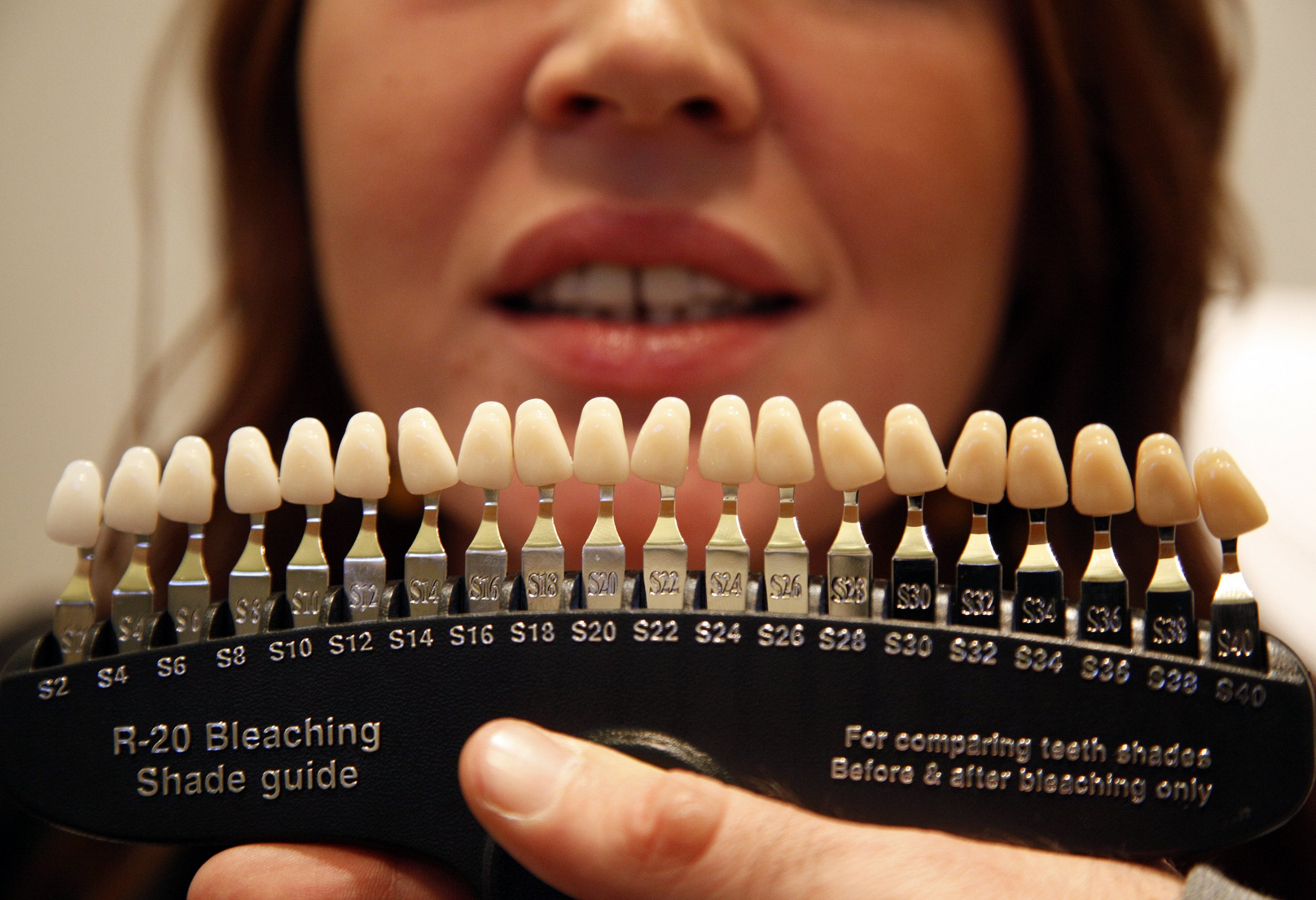 A Woman Holds Tooth Color Chart Before Undergoing Teeth Whitening Treatment In Nice France November 16 2017 Unqualified Beauticians Providing