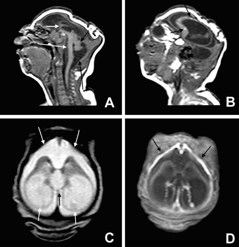 severe microcephaly