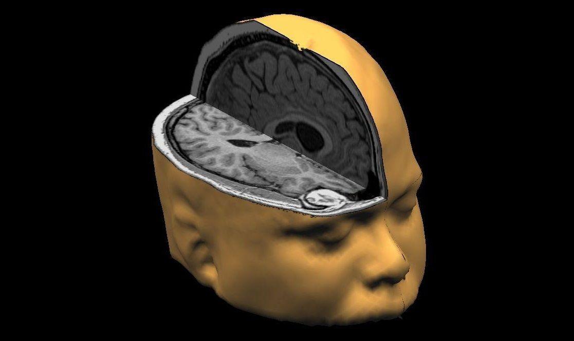 brainprint brain scan dyslexia binghampton